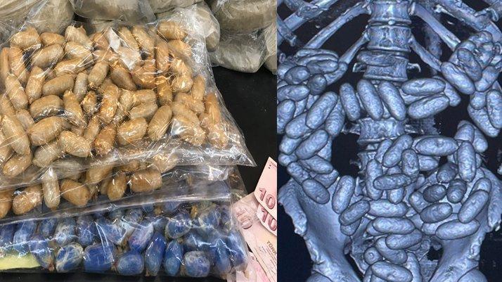 Üç uyuşturucu kuryesinin midesinden 3 kilo eroin çıktı