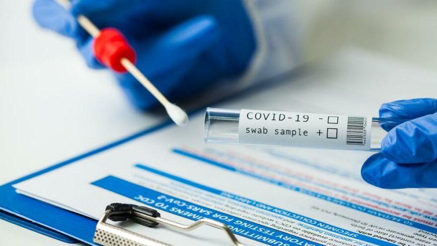 Ukrayna'dan mutasyona karşı 4 ülkeye PCR testi şartı