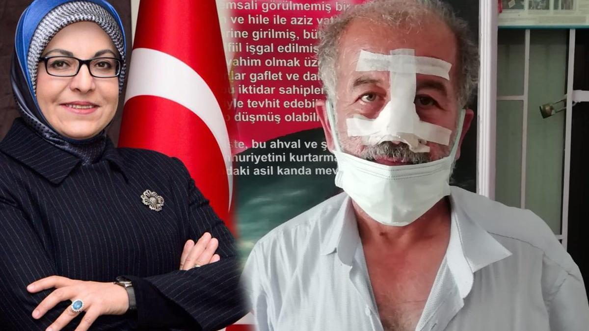 AKP'li eski başkan ve ailesi bu hale getirdi