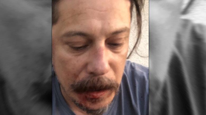 Erk Acarer evinin içinde saldırıya uğradı