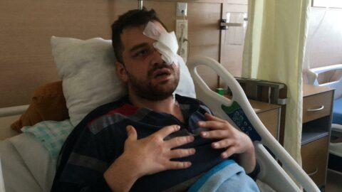Avukatı bıçaklayıp kör eden peruklu saldırgana 18 yıl hapis