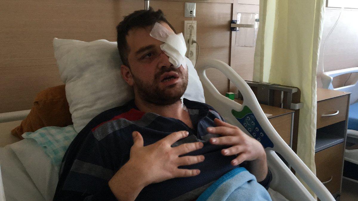 Avukata bıçaklayıp kör eden peruklu saldırgana 18 yıl hapis