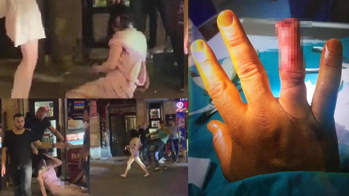 Güvenlik görevlisinin parmağını ısırarak koparmış