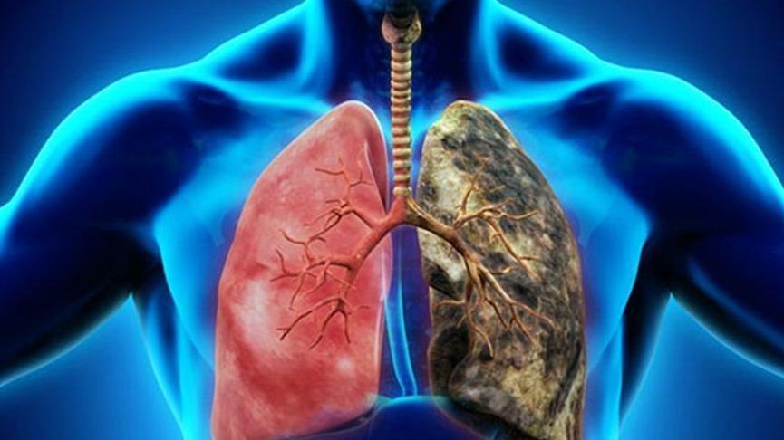 Akciğer kanseri belirtileri nelerdir?
