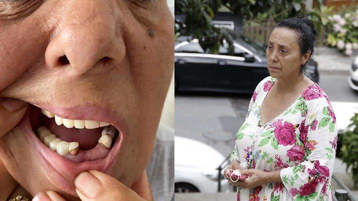 Komşusu sokak ortasında yerde sürükleyip dişlerini kırdı