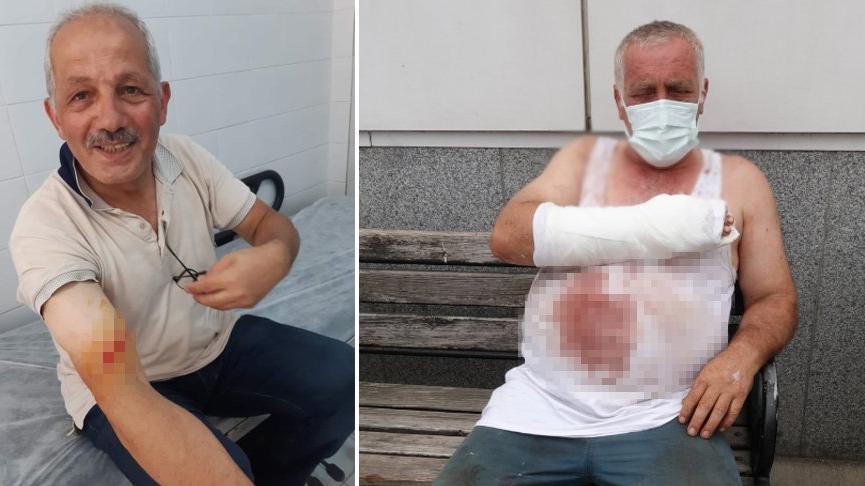 Trabzon'da belediye başkanı, kurban keserken yaralandı