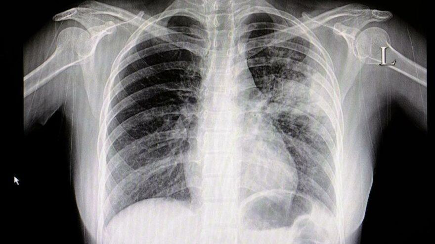 İki doz aşı olup coronaya yakalanan gençler konuştu: Bir ay sürdü