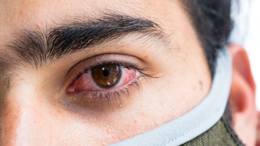 Kara mantar hastalığı nedir, belirtileri neler? Kara mantar bulaşıcı mı?