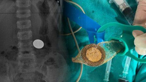 5 yaşındaki çocuğun yuttuğu 50 kuruş, ameliyatla çıkarıldı
