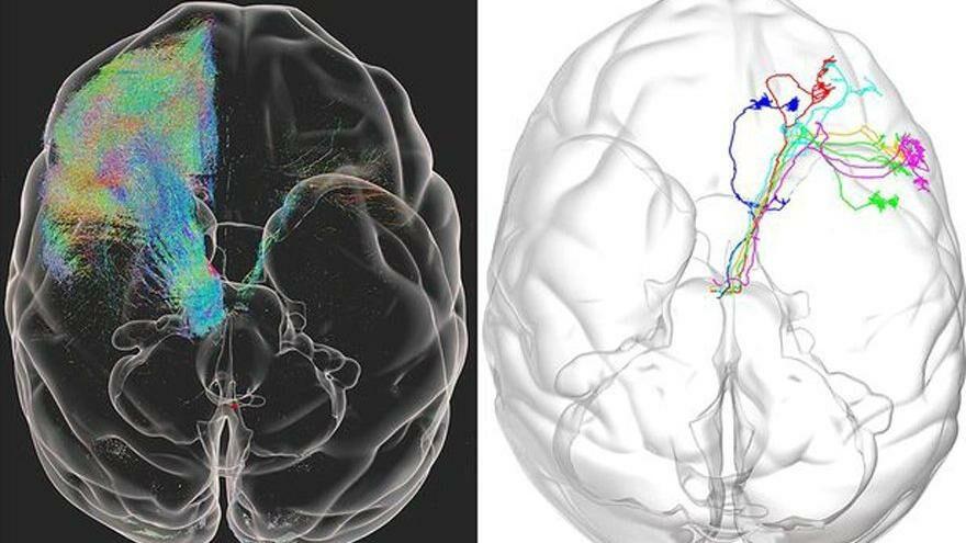 Bilim insanları beynin sırlarını çözmek üzere: Yüksek çözünürlüklü görüntü ile inceliyorlar