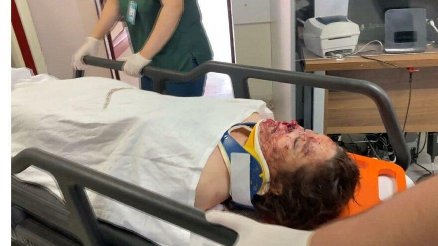 3'üncü kattan düşen kadın hastaneye kaldırıldı