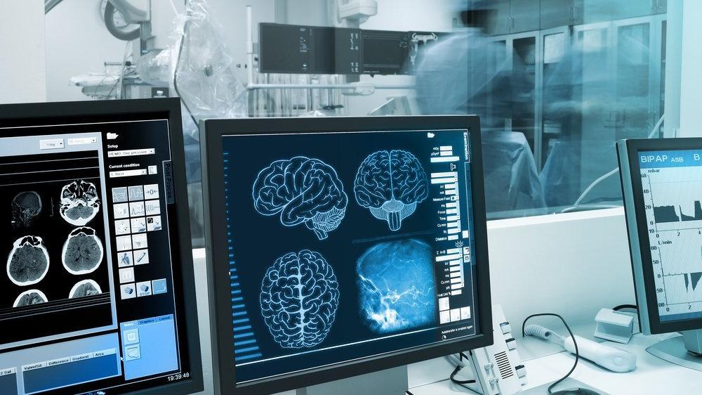 Semptomlar ortaya çıkmadan demans hastalığını teşhis edebilecek