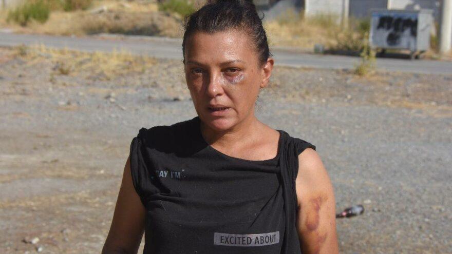 İzmir'deki darp iddiasında her iki taraf da şikayetçi