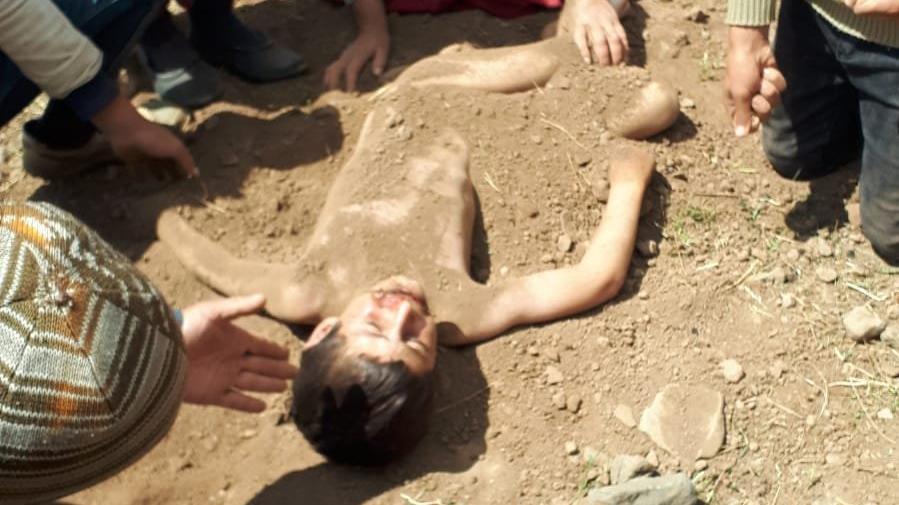 Elektrik akımına kapılan çocuğu toprağa gömdüler, kurtuldu