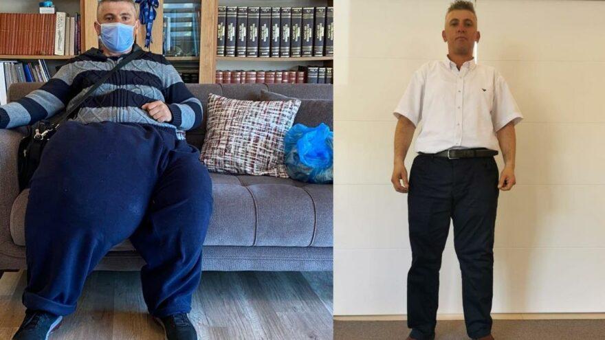 Bacak arasında sallanan 35 kiloluk kitleyle bir ömür geçirdi