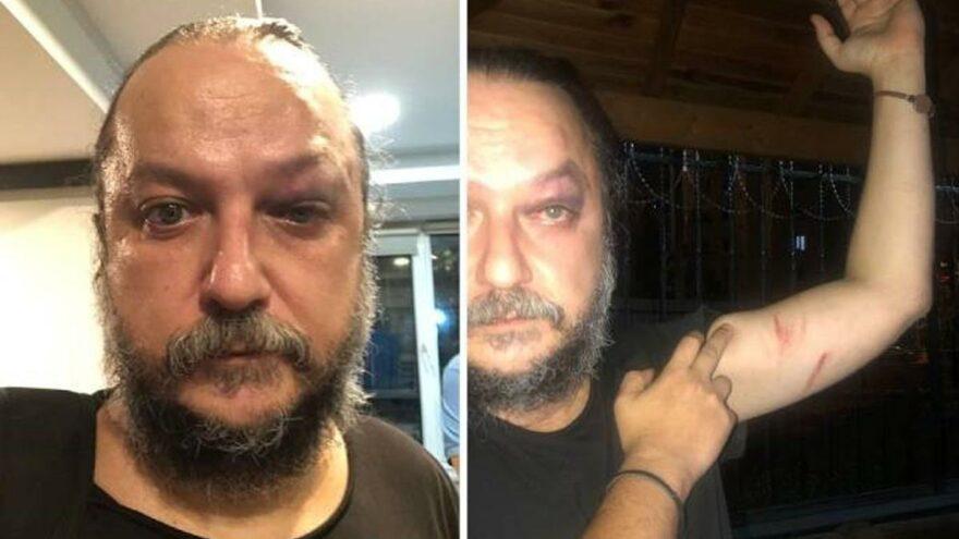 Opera sanatçısı 30 Ağustos konseri sonrası saldırıya uğradı