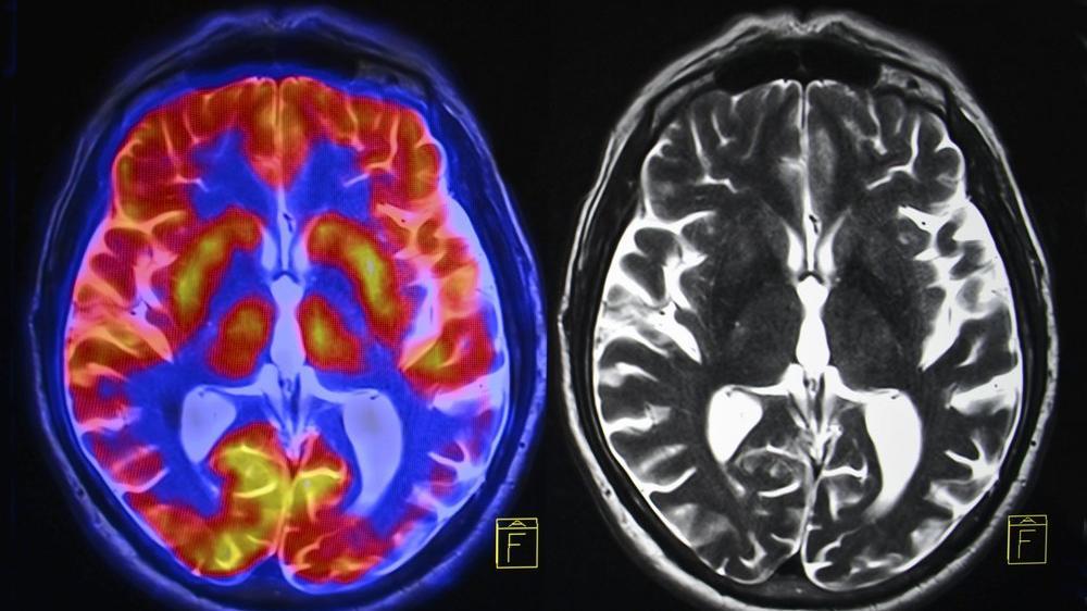 Alzheimer'la mücadelede müthiş başarı: Yeni teknoloji yüzde 99 fark ediyor