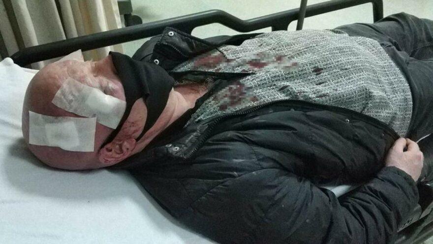 Zurnacıyı davul tokmağıyla hastanelik ettiler