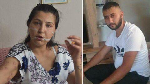 Eşi 104 defa bıçakladı, genç kadın dehşeti anlattı...