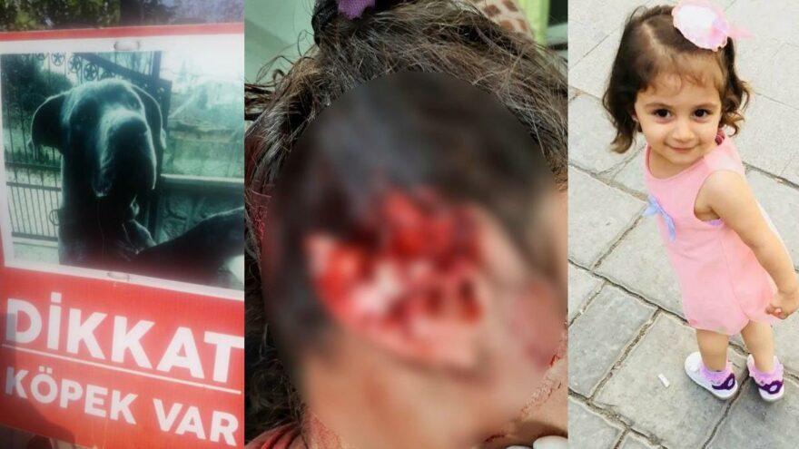 Alaz'ın köpek saldırısında kopan kulağına 300 dikiş