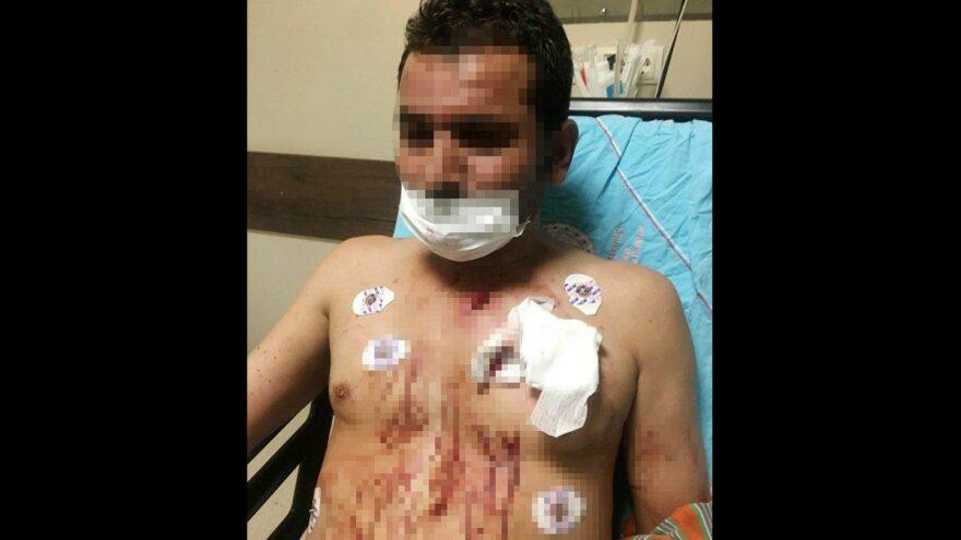 Uygunsuz fotoğraflarını paylaşan erkek arkadaşını göğsünden bıçakladı