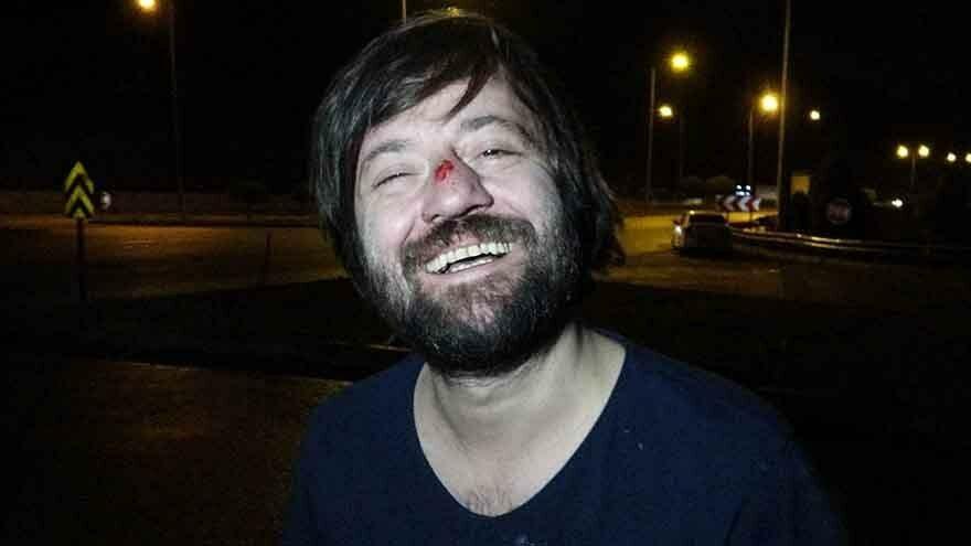 Oyuncu Sadi Celal Cengiz trafik kazası geçirdi