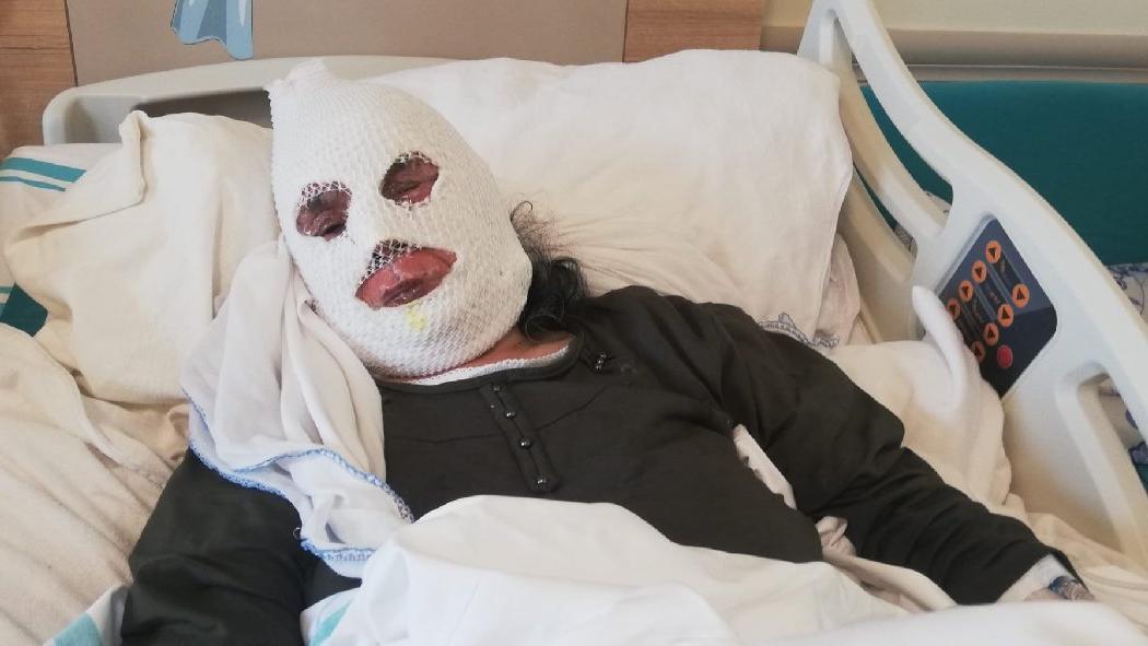 70 yaşındaki kadın tüp patlaması sonucu feci şekilde yandı