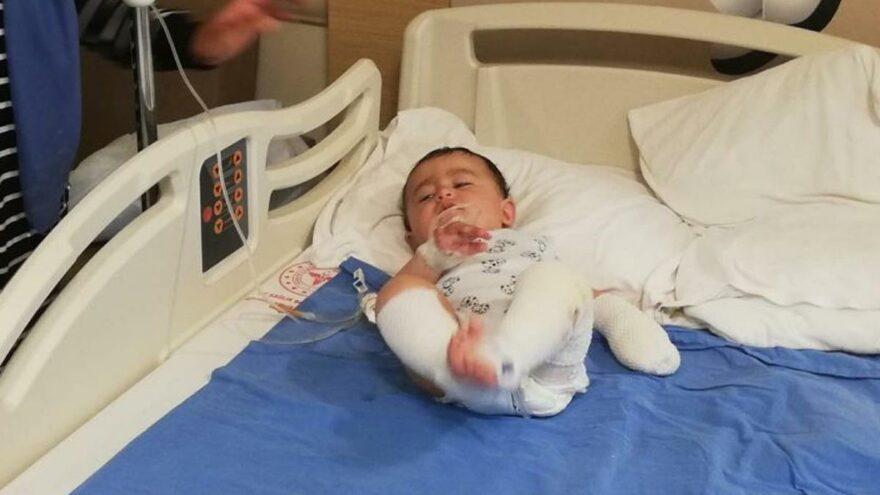 10 aylık bebeğin üzerine çaydanlık devrildi