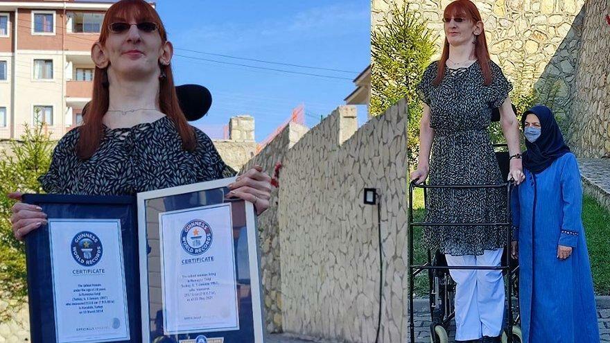Dünyanın en uzun kadını konuştu: Farklı olmak kötü bir şey değil